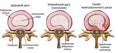Межпозвоночная грыжа шейного отдела позвоночника