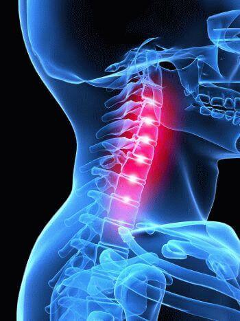 Ущемление нерва шейном отделе симптомы