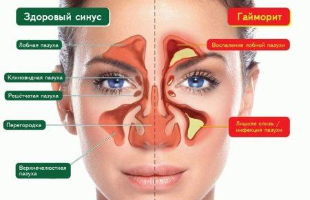 Схематическая разница гайморита и синусита