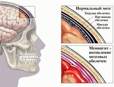 Вирусный менингит схема влияния на мозн