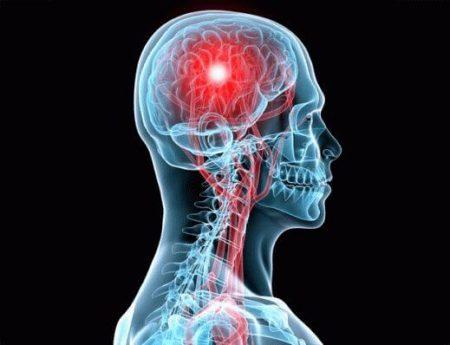 условная локализация опухоли