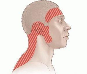 Зоны, в которых наиболее часто локализуется боль у пациентов с головной болью напряжения.