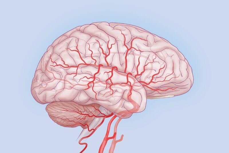 Дисциркуляторная энцефалопатия 1 степени: симптомы, причины и лечение