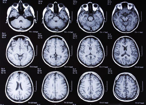 Венозная энцефалопатия: причины возникновения и особенности лечения